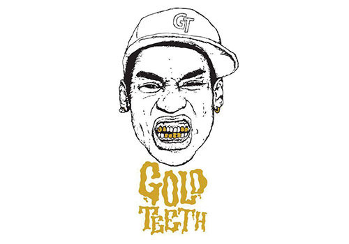 Gold Teeth Takeover